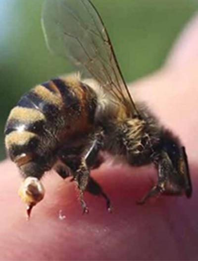 Bee-stings-1.jpg